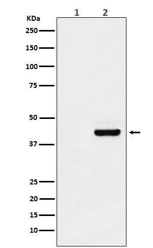 Western blot analysis of Myc-tagged protein expression in (1) 293T cell lysate; (2) 293T cell transfected with Myc-tagged protein lysate.