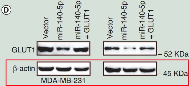 Analysis of miRNA–mRNA network reveals miR-140-5p as a suppressor of breast cancer glycolysis via targeting GLUT1. -EPIGENOMICS
