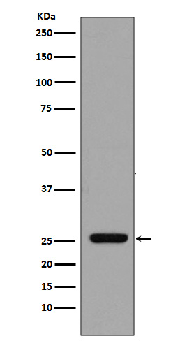Western blot analysis of GST expression in GST recombinant protein.