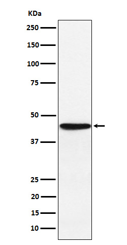 Western blot analysis of HLA F expression in JAR cell lysate.